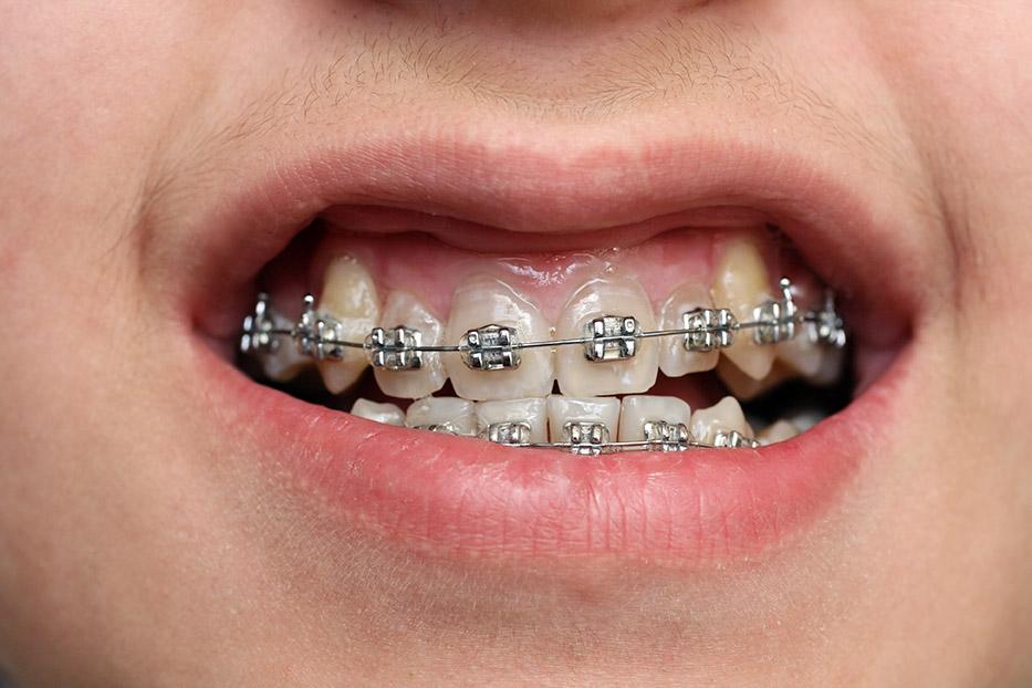 free dental braces for children